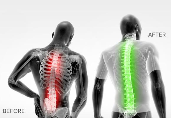 ropa moldeadora hombres dolor espalda